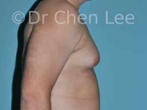 Gynecomastia surgery before after male breast reduction right side photo #08