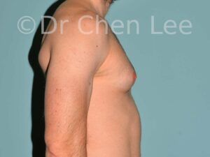 Gynecomastia surgery before after male breast reduction right side photo #04