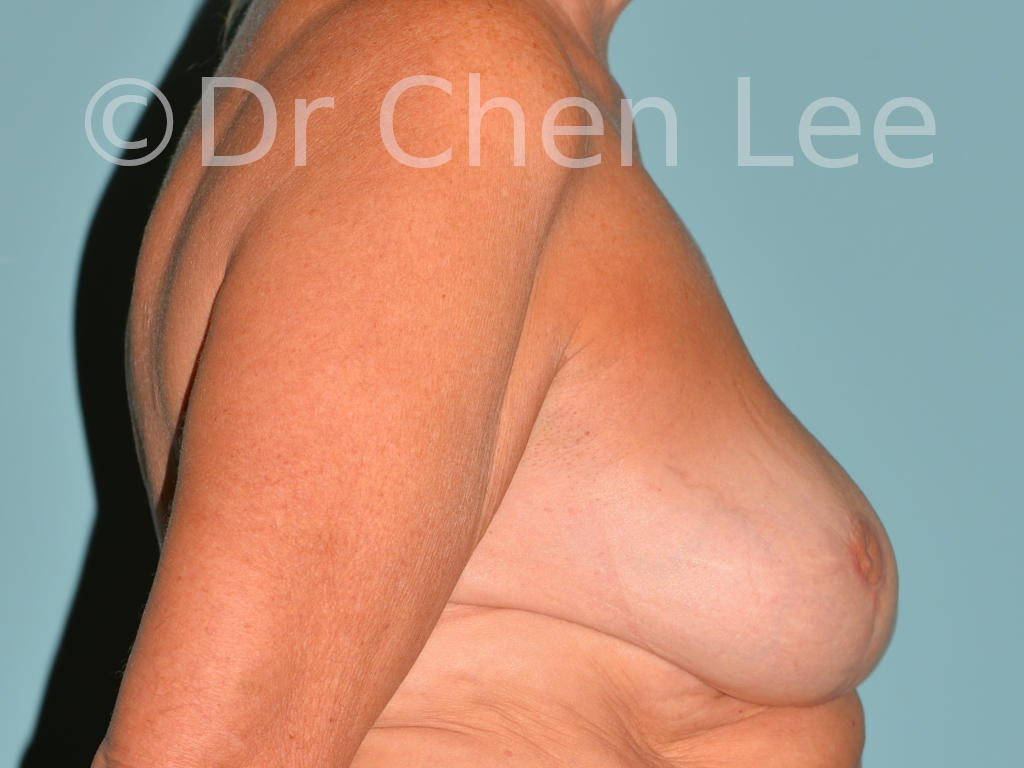 Inverted nipple surgery before after right side photo #11