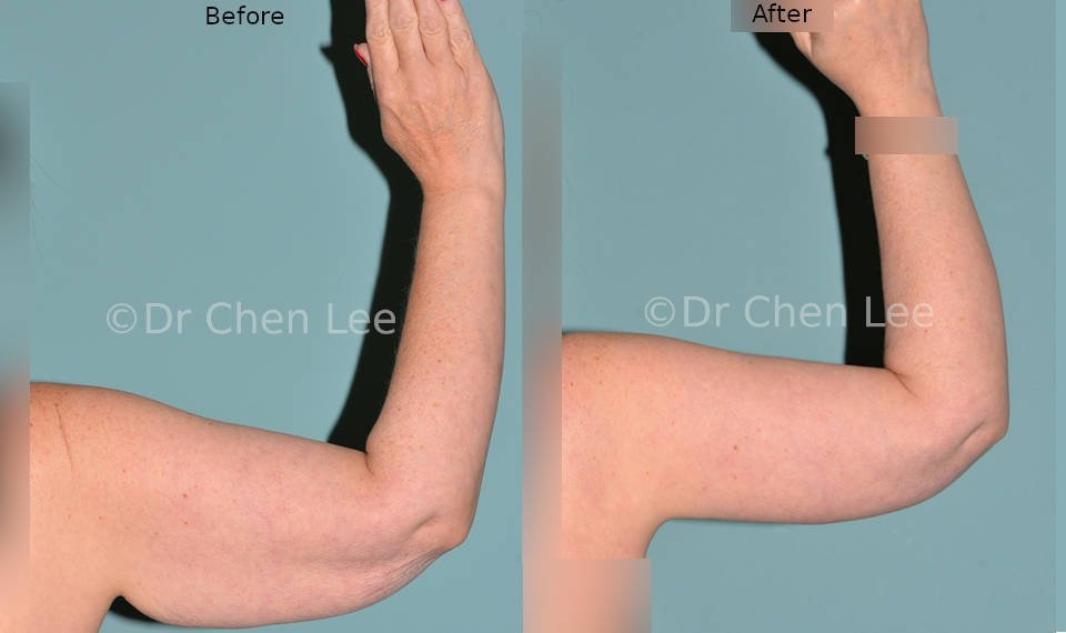 Brachioplasty before after arm lift left back photo #03