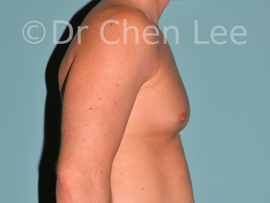 Gynecomastia surgery before after male breast reduction right side photo #07