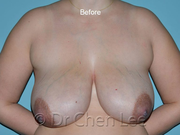 Breast reduction before after front photo #04