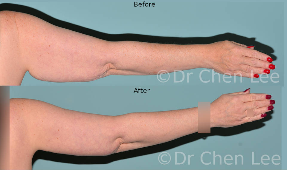 Brachioplasty before after armlift left back photo #03