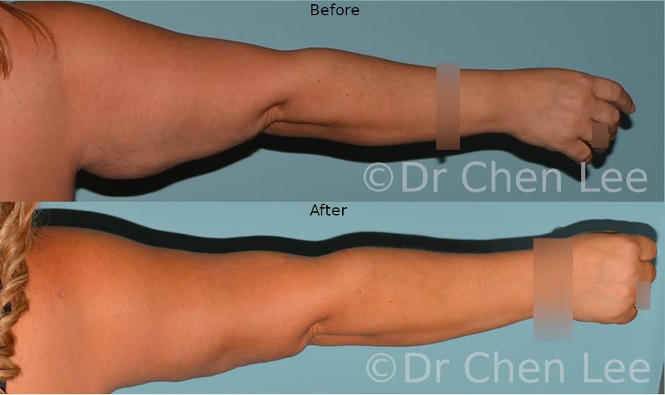 Brachioplasty before after arm lift left back photo #04