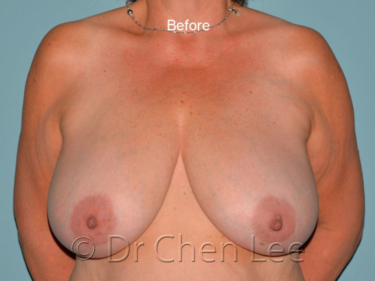 Breast reduction before after front photo #03