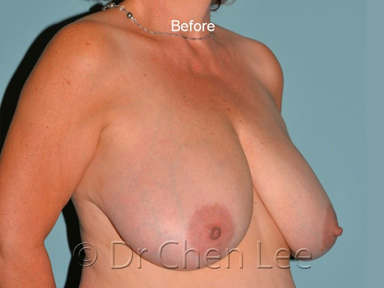 Breast reduction before after right oblique photo #03