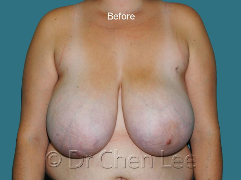 Breast reduction before after front photo #01