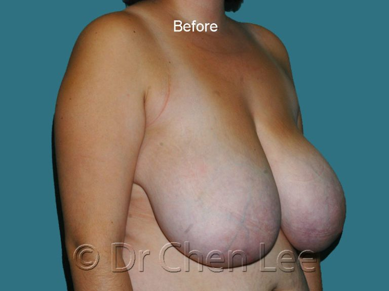 Breast reduction before after right oblique photo #01
