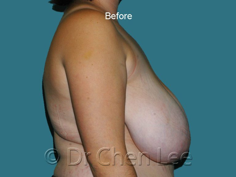 Breast reduction before after right side photo #01