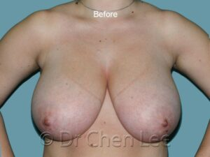 Breast reduction before after front photo #05