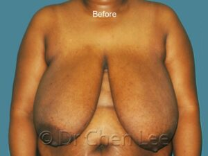 Breast reduction before after front photo #06