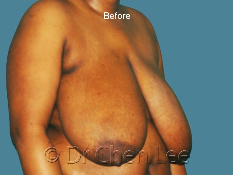 Breast reduction before after right oblique photo #06