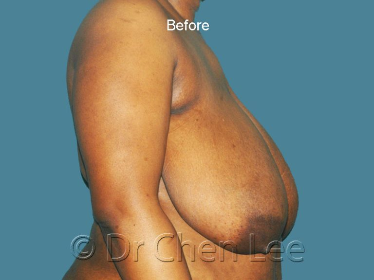 Breast reduction before after right side photo #06