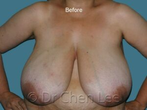 Breast reduction before after front photo #07