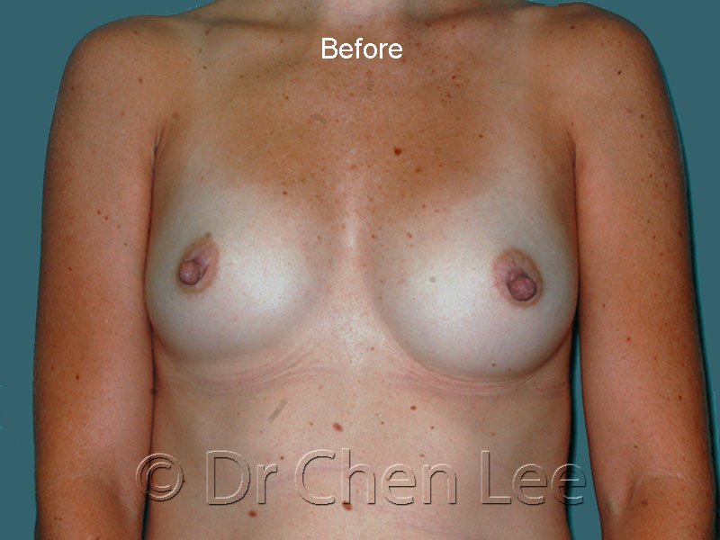 Breast augmentation/implant before after front photo #41
