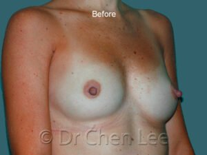 Breast augmentation/implant before after right oblique photo #41