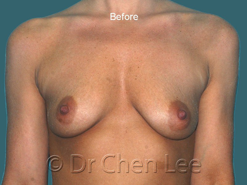 Breast augmentation/implant before after front photo #43