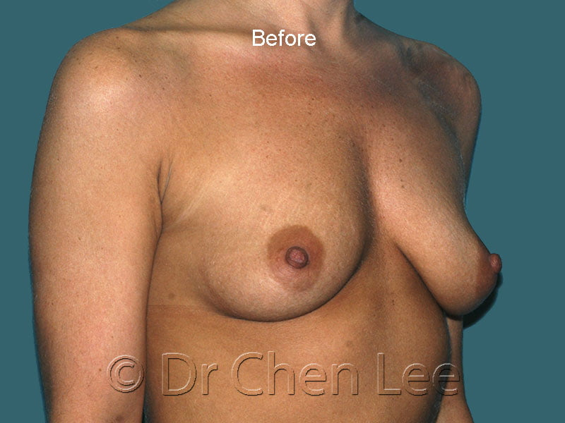 Breast augmentation/implant before after right oblique photo #43