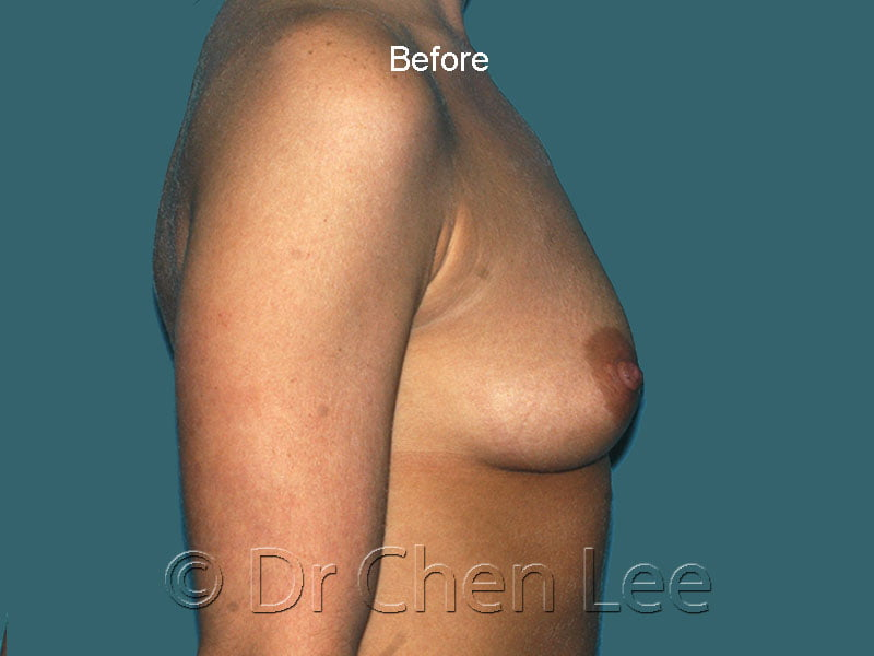 Breast augmentation/implant before after right side photo #43