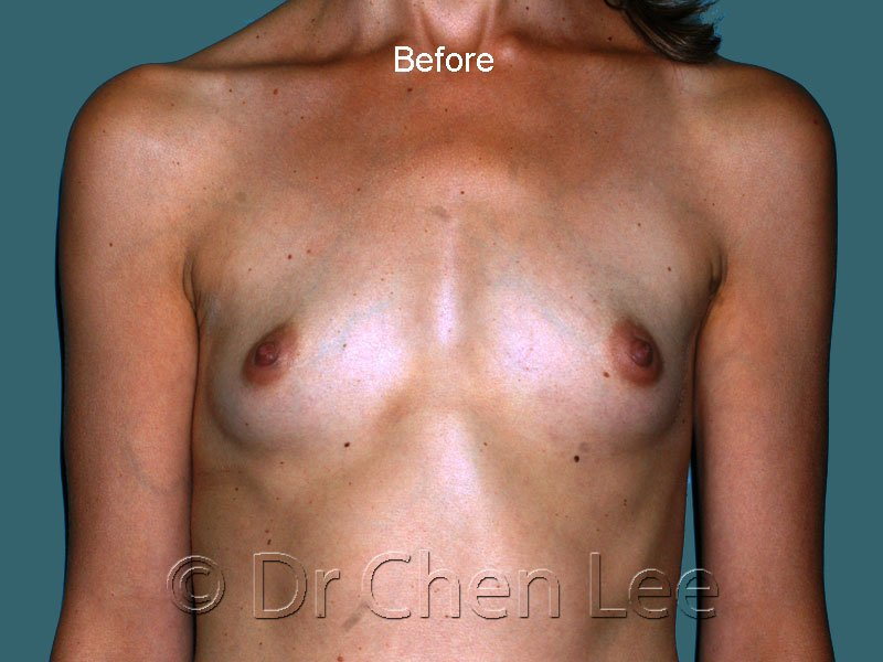 Breast augmentation/implant before after front photo #44