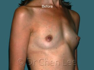 Breast augmentation/implant before after right oblique photo #44