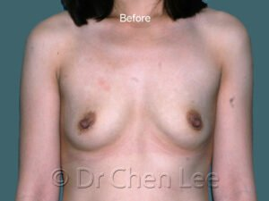Breast augmentation/implant before after front photo #45