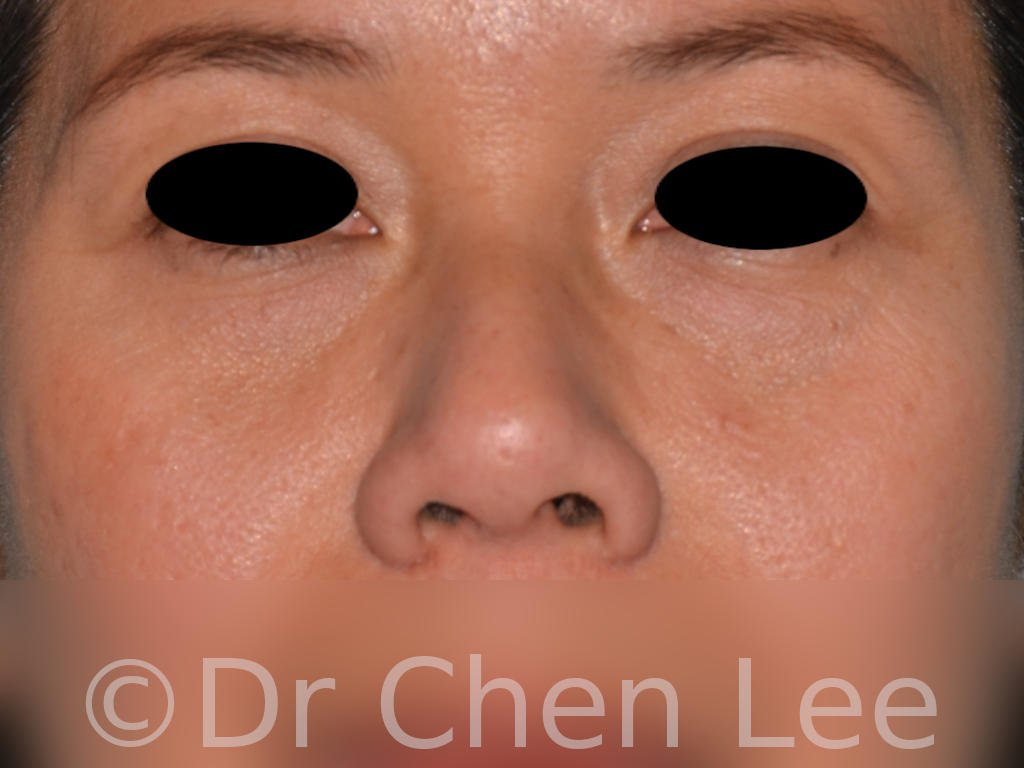 Nonsurgical rhinoplasty before after nose injection hyaluronic acid filler front photo #03