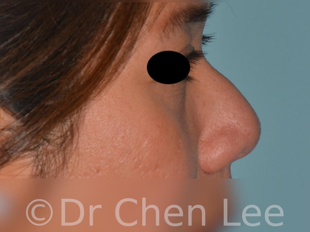 Nonsurgical rhinoplasty before after nose injection hyaluronic acid filler right side photo #03
