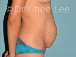 Abdominoplasty before after tummy tuck right side photo #01