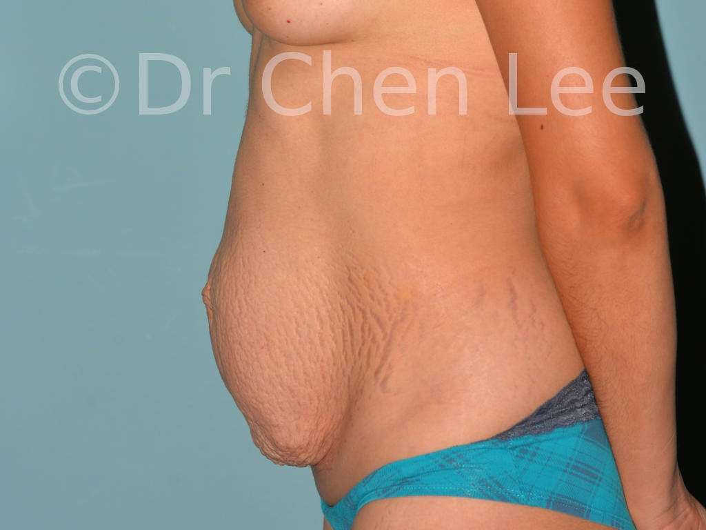 Abdominoplasty before after tummy tuck left side photo #01