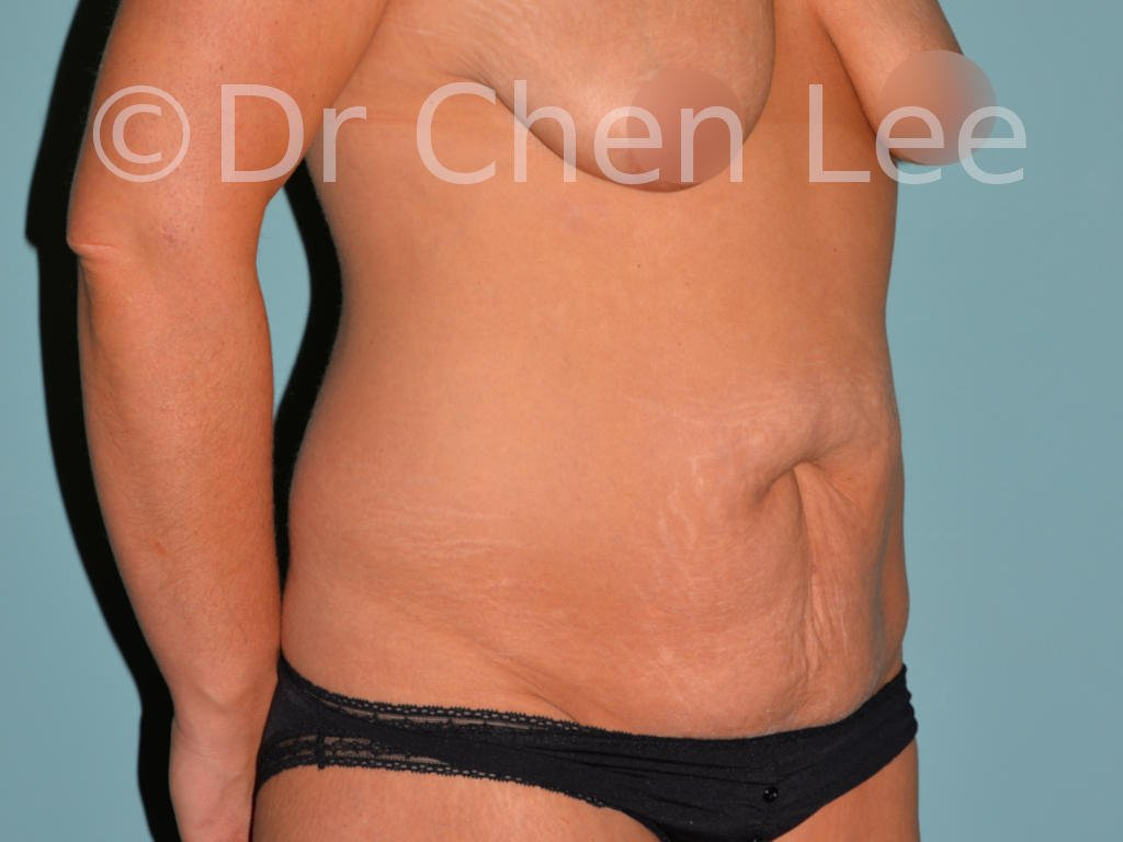 Abdominoplasty before after tummy tuck right oblique photo #03