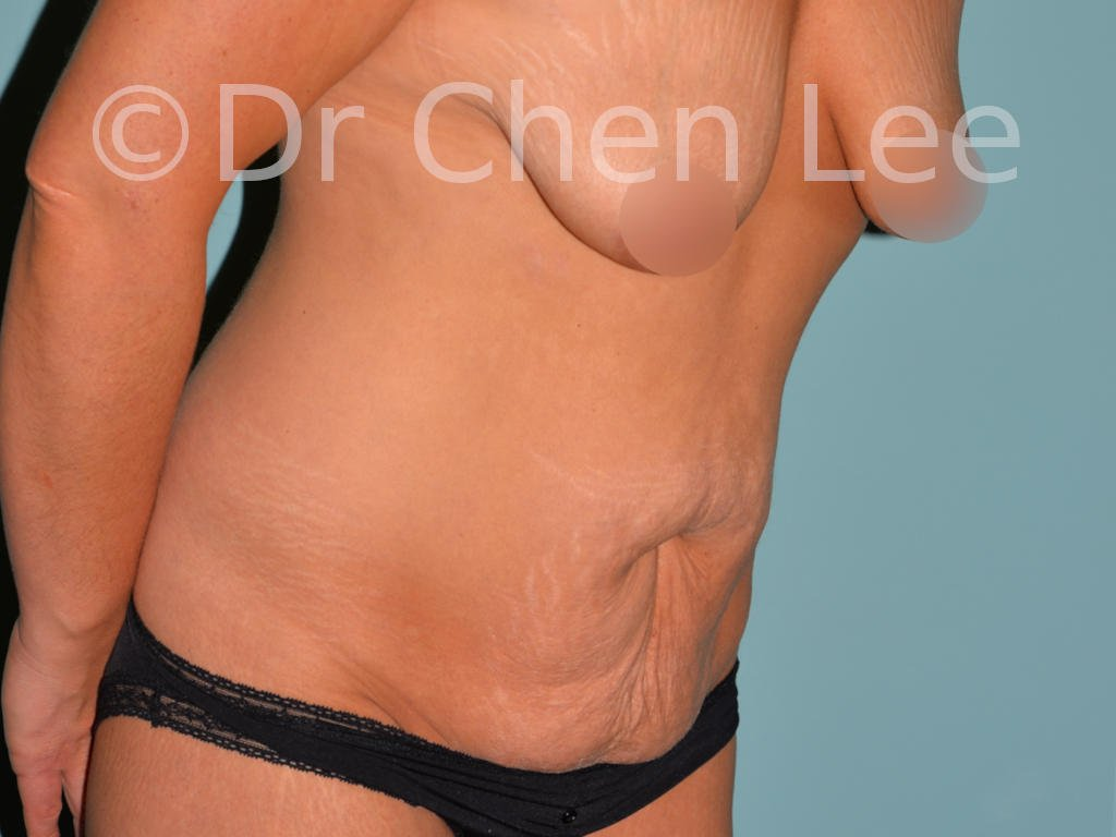 Abdominoplasty before after tummy tuck right oblique flex photo #03