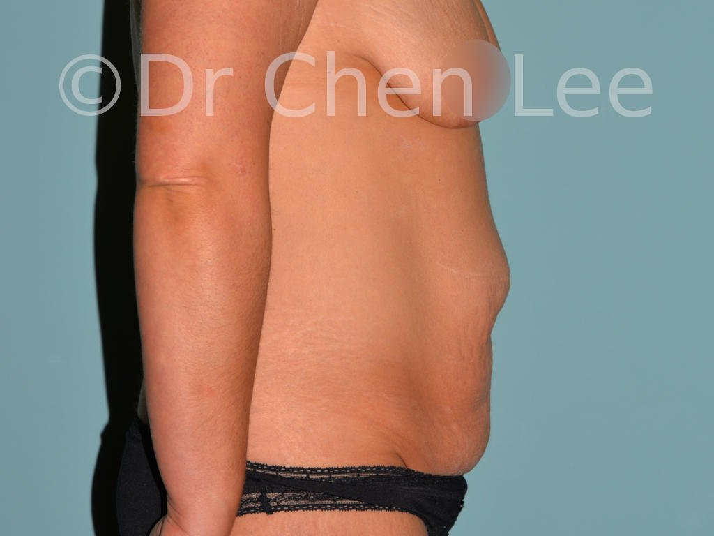 Abdominoplasty before after tummy tuck right side photo #03