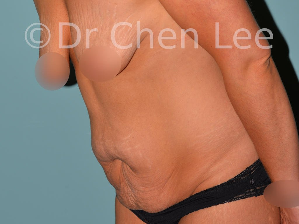 Abdominoplasty before after tummy tuck left oblique flex photo #03