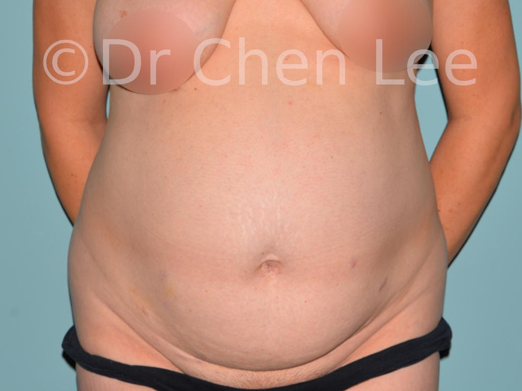 Abdominoplasty before after tummy tuck front photo #04