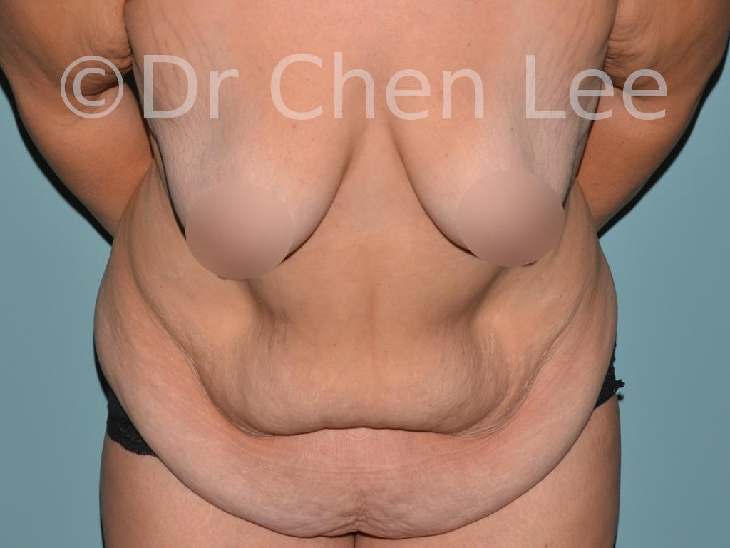 Abdominoplasty before after tummy tuck front flex photo #05
