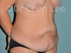 Abdominoplasty before after tummy tuck right oblique photo #05