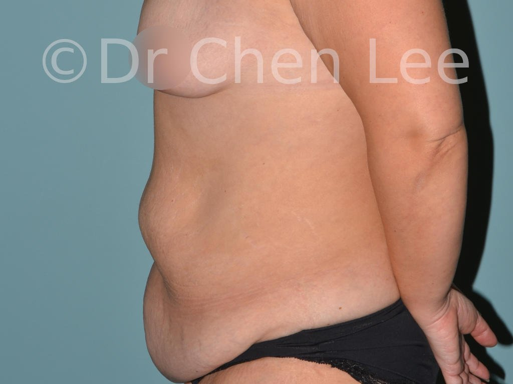 Abdominoplasty before after tummy tuck left side photo #05