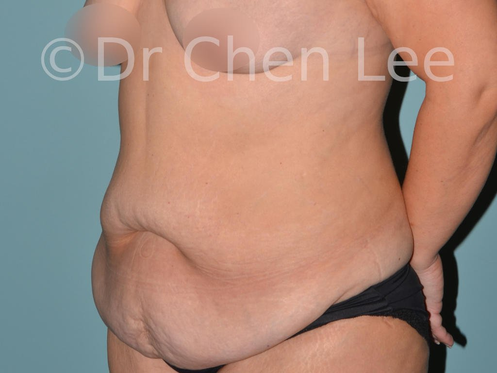 Abdominoplasty before after tummy tuck left oblique photo #05
