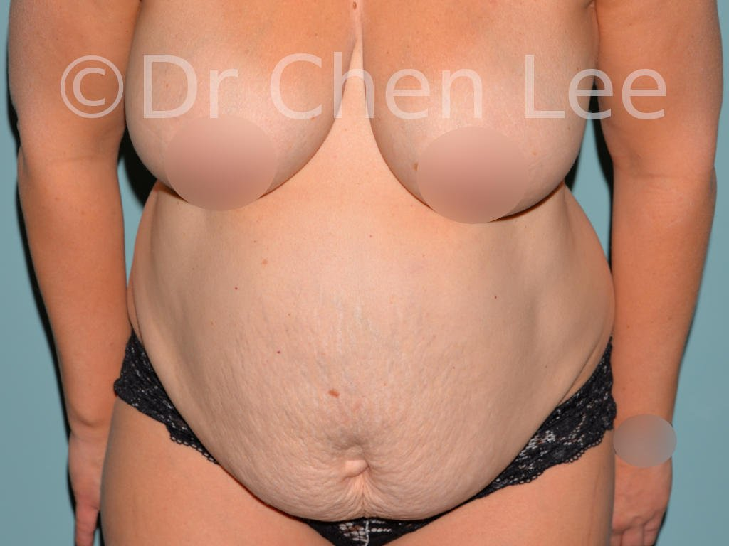 Abdominoplasty before after tummy tuck front flex photo #06