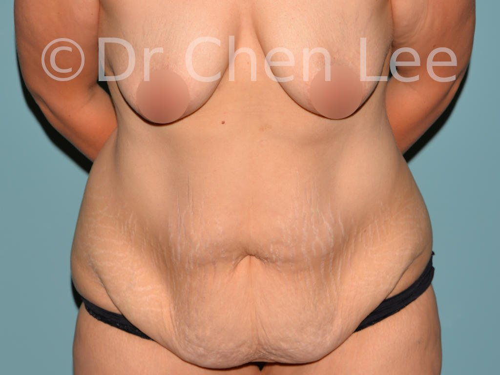 Abdominoplasty before after tummy tuck front flex photo #07