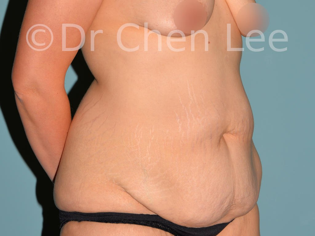 Abdominoplasty before after tummy tuck right oblique photo #07