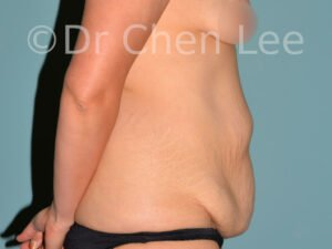 Abdominoplasty before after tummy tuck right side photo #07