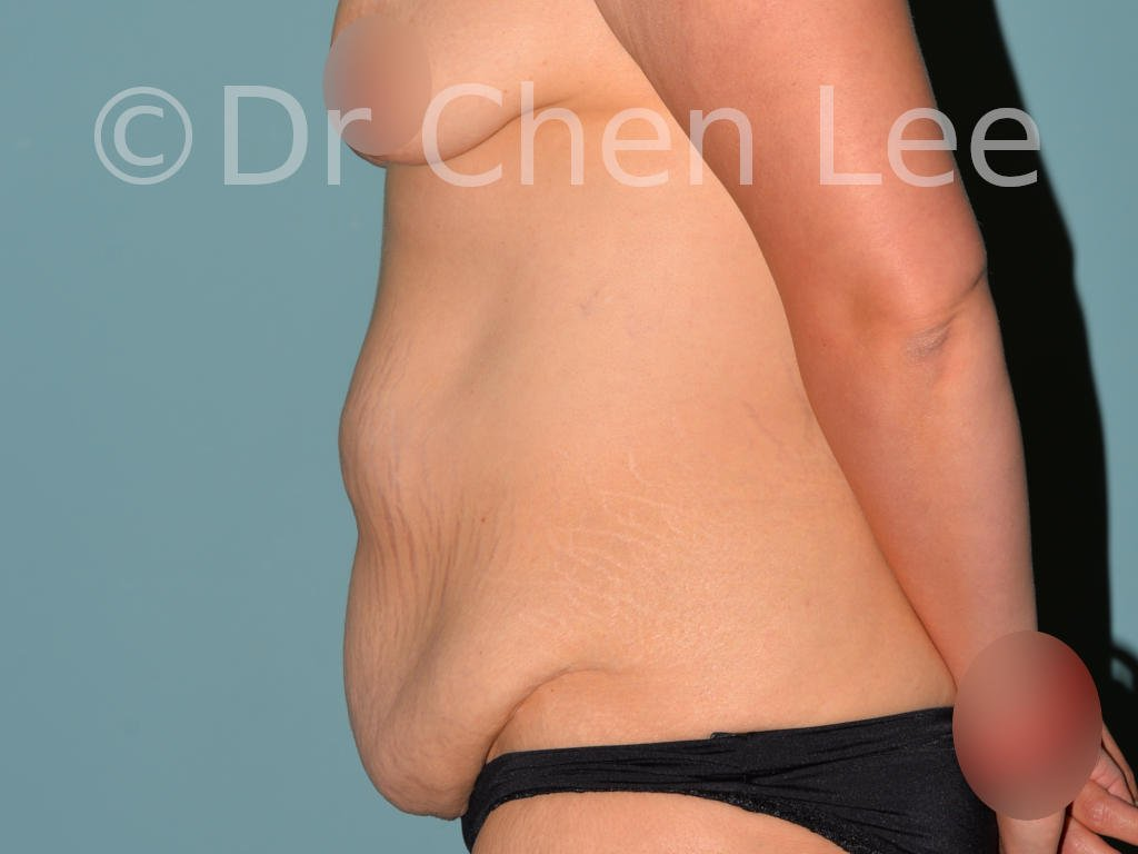 Abdominoplasty before after tummy tuck left side photo #07