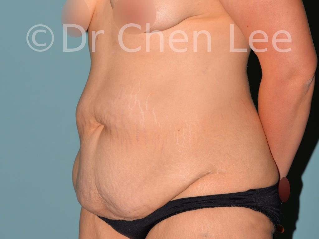 Abdominoplasty before after tummy tuck left oblique photo #07