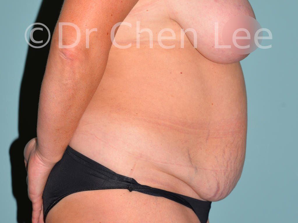 Abdominoplasty before after tummy tuck right side photo #08
