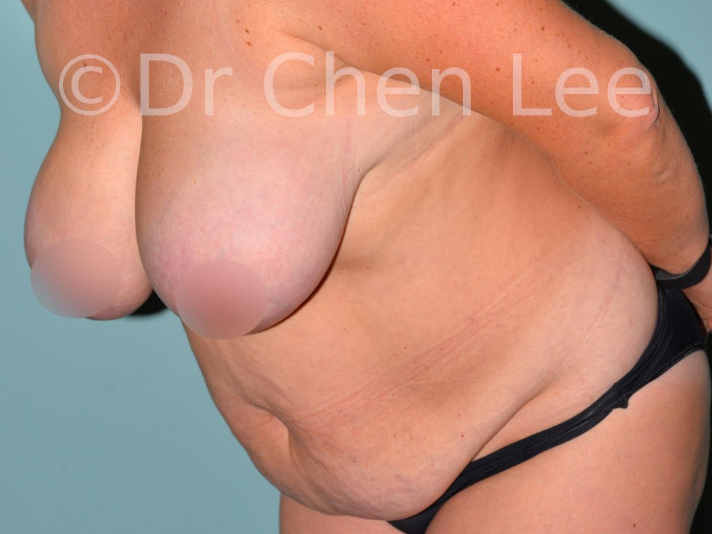 Abdominoplasty before after tummy tuck left oblique flex photo #08