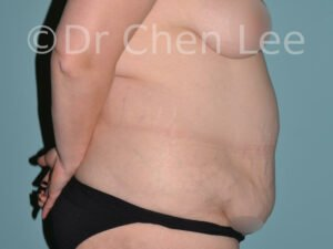 Abdominoplasty before after tummy tuck right side photo #19