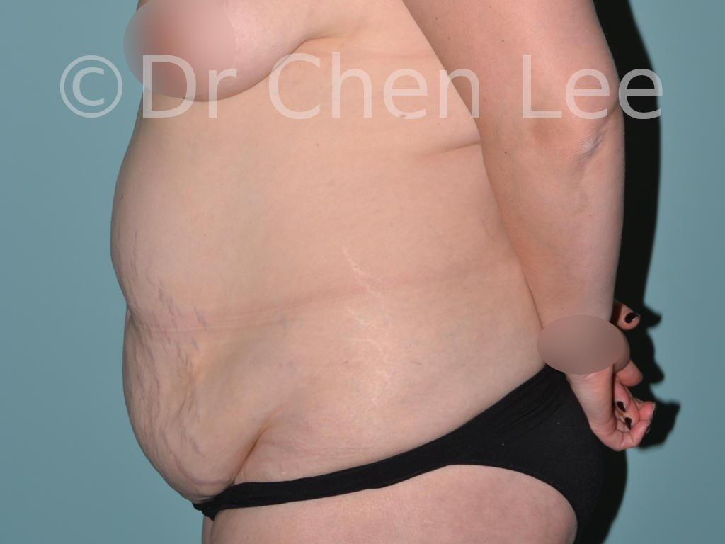 Abdominoplasty before after tummy tuck left side photo #09