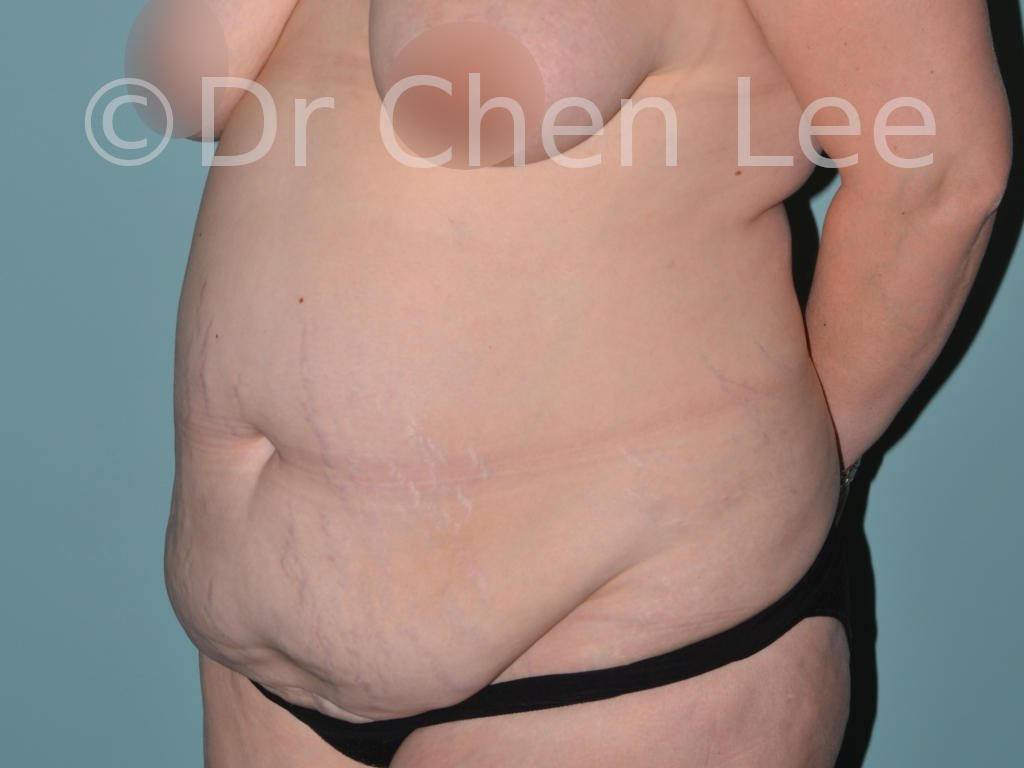 Abdominoplasty before after tummy tuck left oblique photo #09